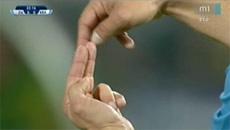 カンナヴァーロの手